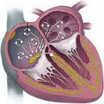 Ictus da fibrillazione atriale