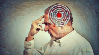 amnesia-disociativa