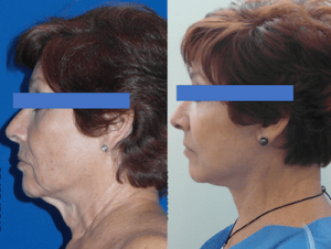 Ritidectomía Facial
