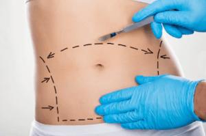 cirugía plastica