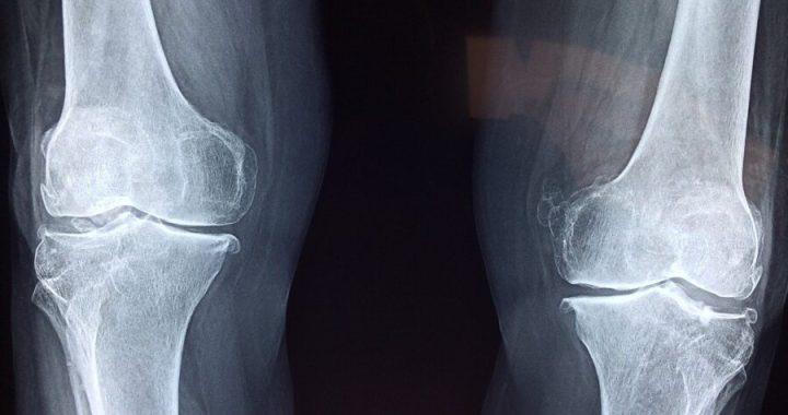Osteoartrite del ginocchio: la totale sostituzione