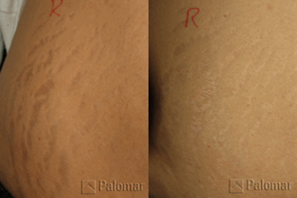 Carboxy Treatment And After