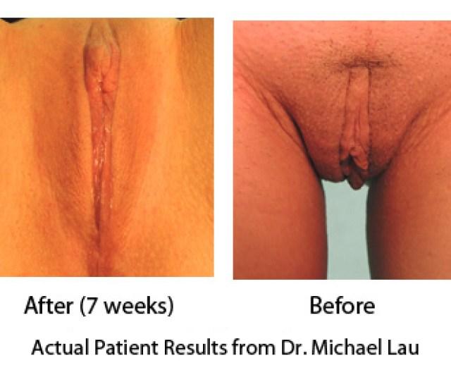 Vaginal Rejuvenation And Labiaplasty