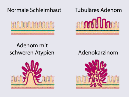 Adenom-Karzinom-Sequenz. User:Doktor silke / Wikimedia Commons, GFDL/CC-by-SA 3.0