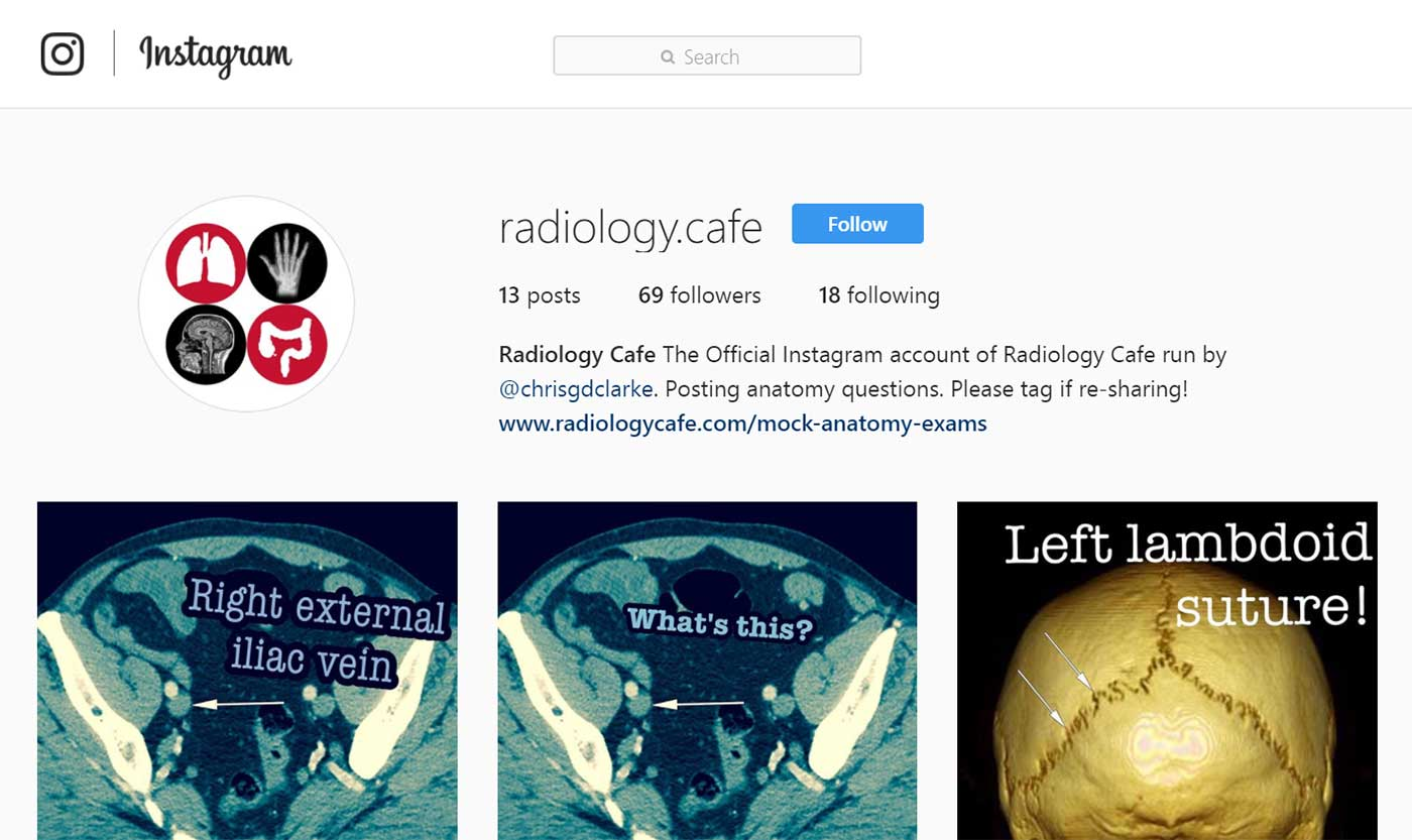 Radiology Cafe Is Now On Instagram