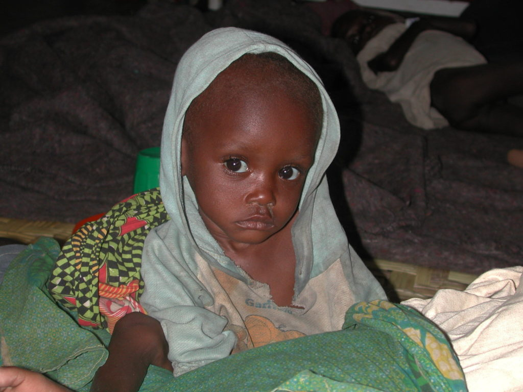 Malnourished child near Kuito