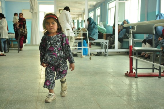 Shakila, aged 5, was born with a short leg