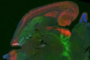 False colour image of a rat brain