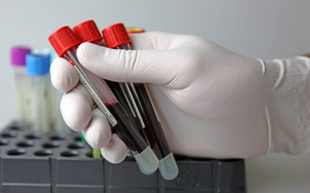 A scientist holds three test tubes filled with blood in a laboratory.