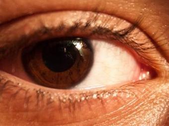 """Glaucoma, """"el ladrón de su vista"""""""
