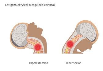 que-es-el-esguince-cervical-2