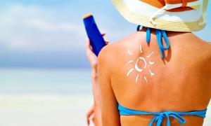 Remedios caseros para curar quemaduras del sol