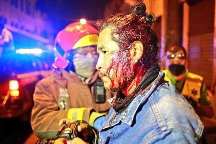 Fotoperiodista Carlos Sebastián después de ser golpeado por un agente de la Policía Nacional