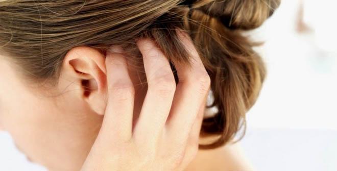 Лечение жирной себореи кожи