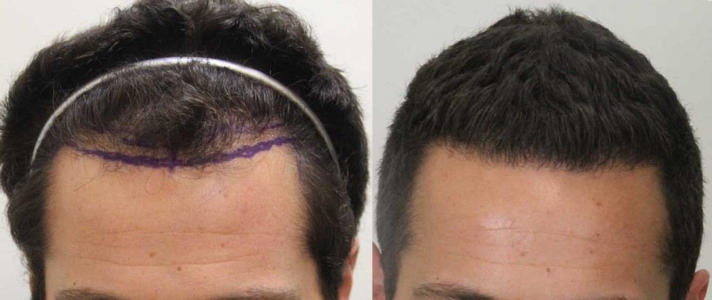 How To Regrow Thinning Hair A Simple 4 Step Plan Dr Rahal