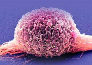 mesane kanseri