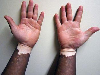English: Vitiligo