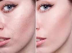 home remedies best ways to remove blemishes