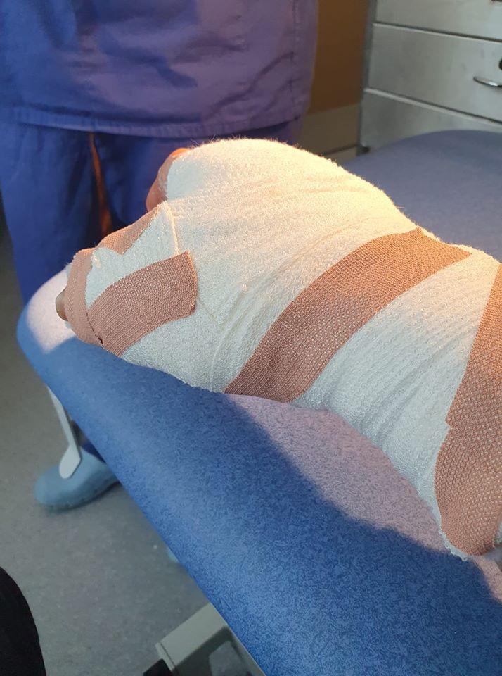 bandaged hand
