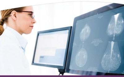 Sectra en RAM Infotechnology gaan samen ICT-diensten leveren voor Nationale Bevolkingsonderzoek Borstkanker
