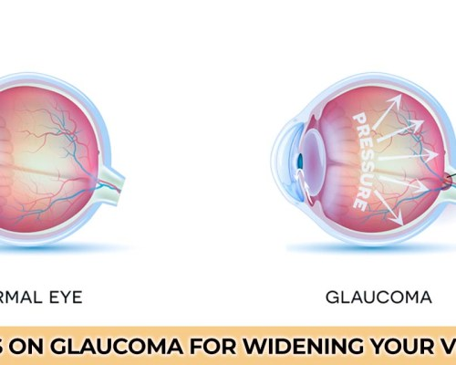 FAQ's on Glaucoma for widening your vision