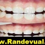 Dentaliva Başakşehir Ağız ve Diş Sağlığı Polikliniği