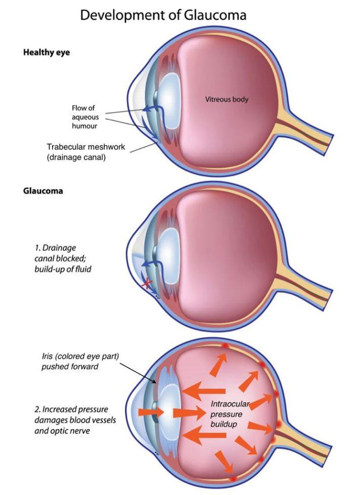 Ocular Hypertension Natural Treatment