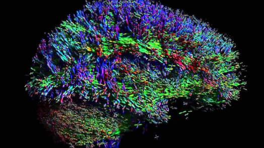 Artificial Synapse To Put Brain On A Chip