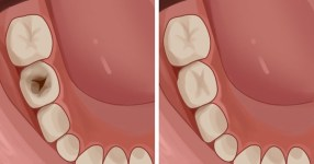 Regrow Teeth Damaged From Cavities