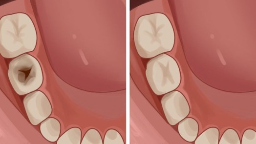 Regrow Teeth Damaged From Cavities
