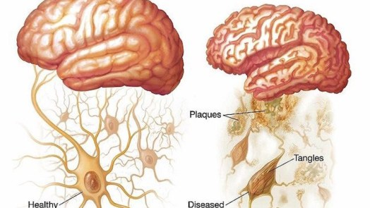 Brain - Genetic Risk Factor of Alzheimer's Disease