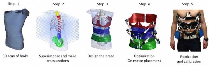 designing Robotic Spine Exoskeleton to treat deformities