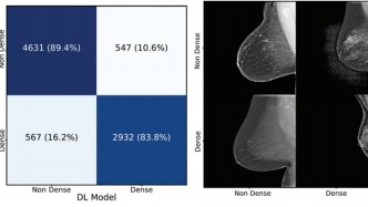 AI Detects Breast Cancer in Mammogram