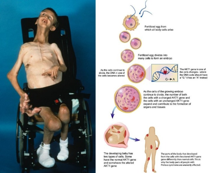 Proteus syndrome