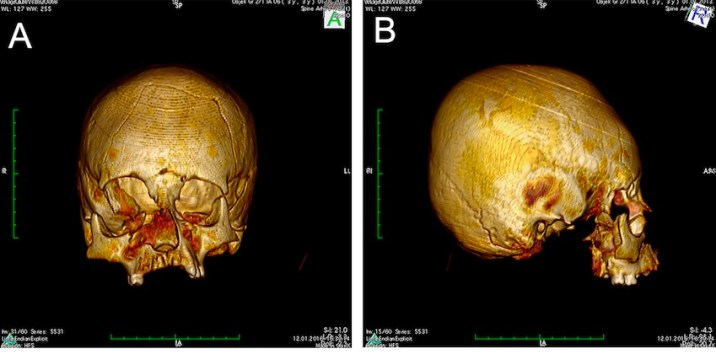 Skulls Deformed Intentionally