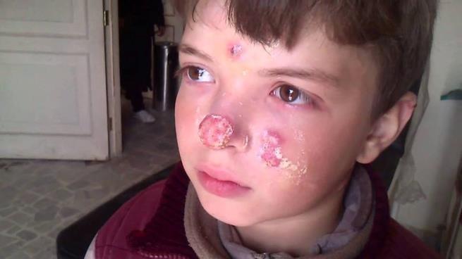 """""""اللشمانيا"""" يصيب مئات المدنيين في الرقة السورية"""
