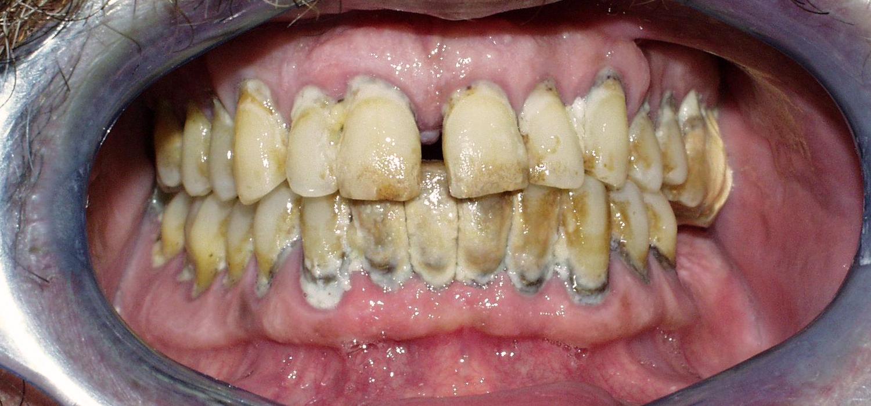 Prótesis completa con implantes. Antes