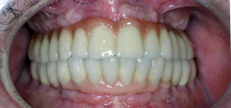 Prótesis completa con implantes. Después