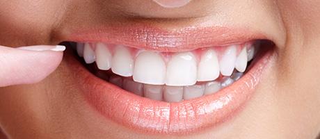 implantes dentales y sus cuidados raul cortez madrid