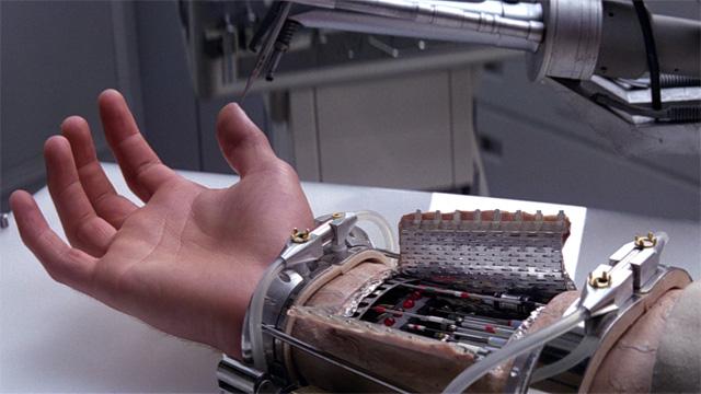 Prosthetic arm w/ carbon nanotubing via Luke Skywalker.
