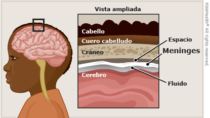 Meningitis infografía herbotop