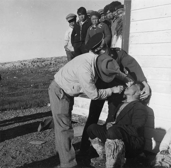 Photograph of a RCMP member in the North assisting with the extraction of a tooth (Source of photo - Ric Hall's Photo Collection).