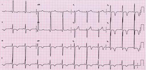 Image result for hypertrophic cardiomyopathy ecg