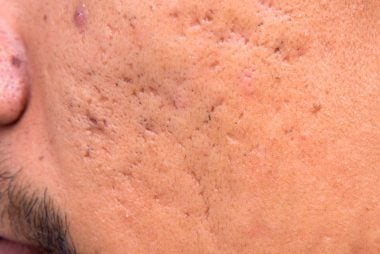 01-icepick-The-5-Types-of-Acne-Scars-and-How-to-Treat-Them-211513207-Only-background