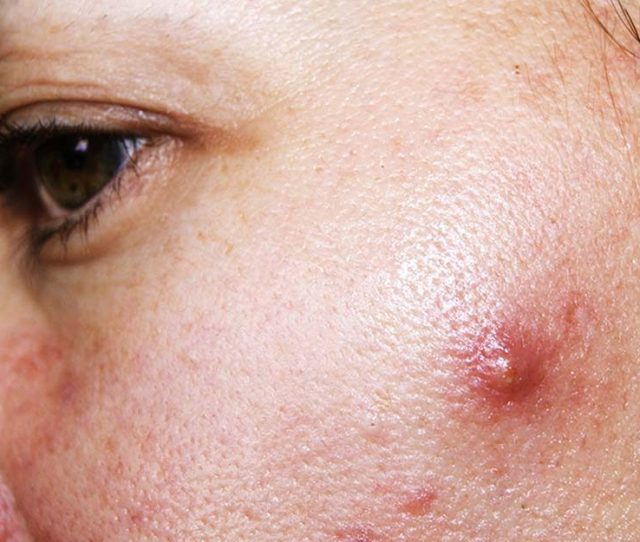 How To Get Rid Of Cystic Acne Sometimes Overnight Really Readers Digest