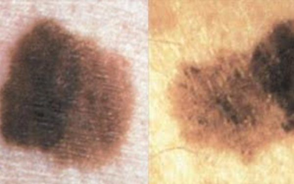 What's the Difference Between Melasma, Sun Spots, and ...
