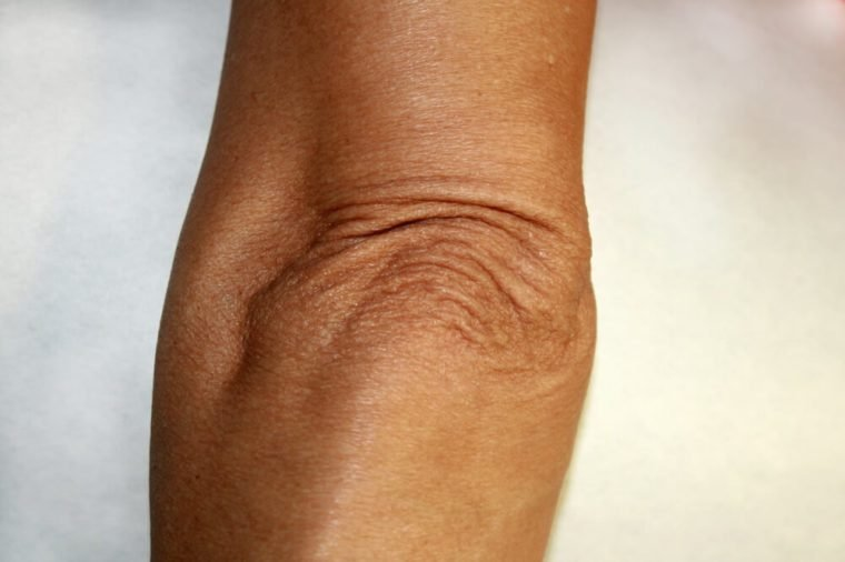 Wrinkles and creases on his elbow. Old wrinkled elbow.