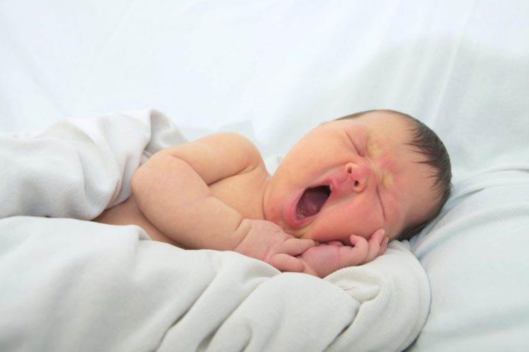 funny baby face,newborn with jaundice on white blanket, infant health care concept