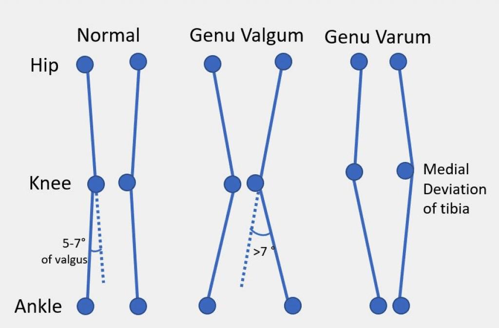 Valgus Varus Knee Positions