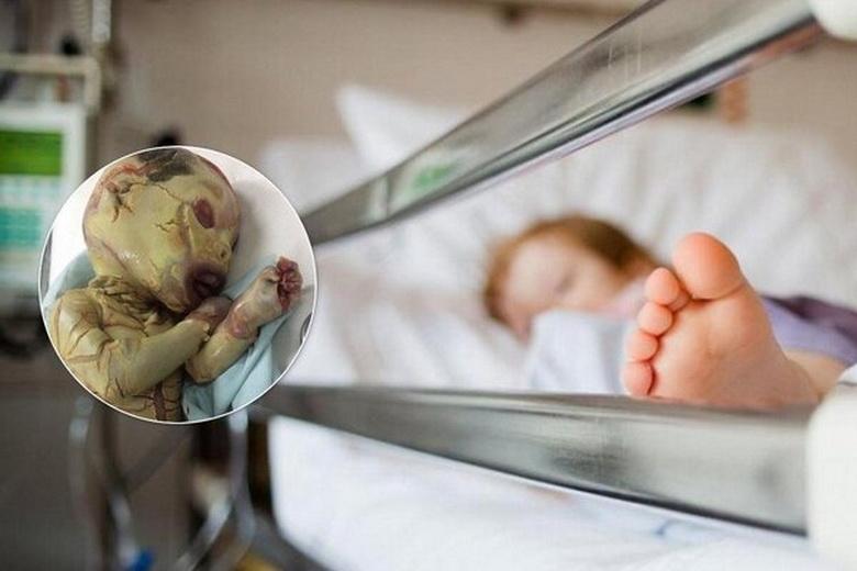 """Малыша с """"синдромом вампира"""" оставили в больнице"""